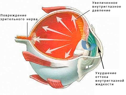 Что такое глаукома