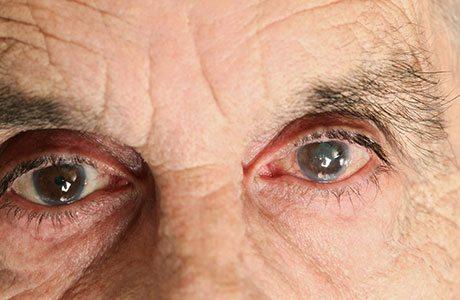 Катаракта - заболевание, характеризующееся помутнением хрусталика и обусловленным этим ухудшением зрения.
