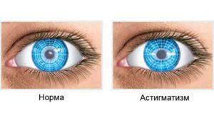 Купить очки для зрения в кемерово недорого