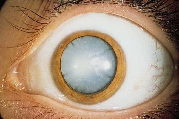 Внешний вид глаза при катаракте.