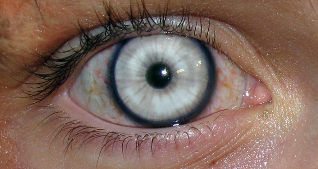 Как лечат помутнение стекловидного тела глаза