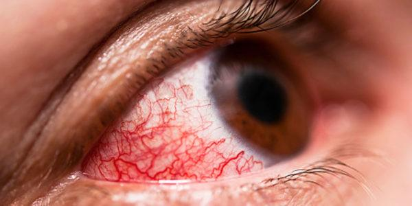 Красные глаза - признак воспаления