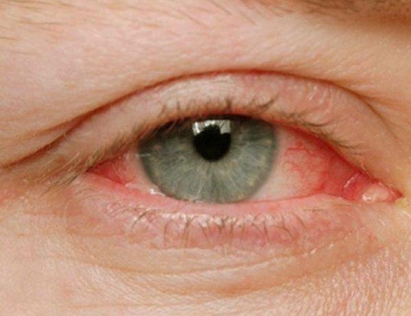 Аллергическое воспаление глаз.