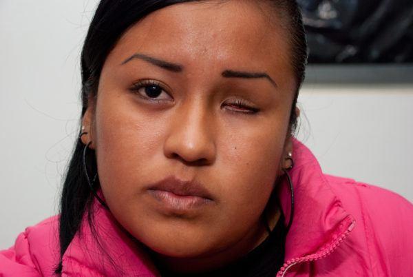 операция по удалению глазного яблока нарушает эстетику лица