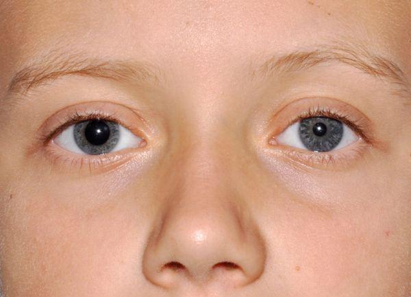 разный размер зрачков указывает на наличие анизокории