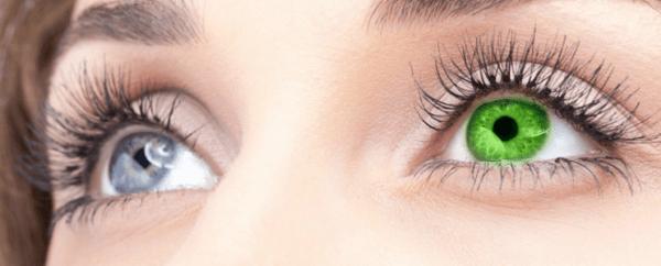 гетерохромность глаз у пациента
