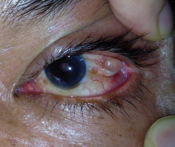 полость кисты расположена в правой части глаза