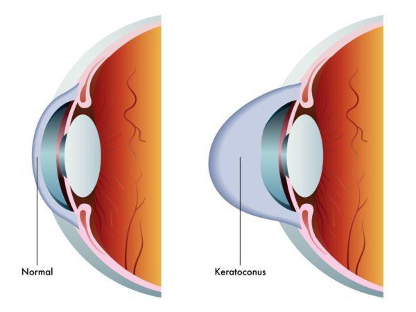 Рисунок изображает нормальный глаз и кератоконус