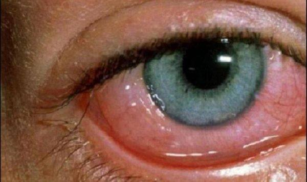 Отечность слизистой глаза