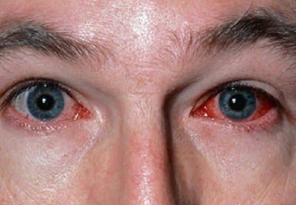 Конъюнктивит глаз у беременных 12