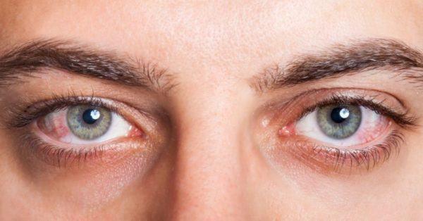 Покраснение глаз -первый признак гиперемии