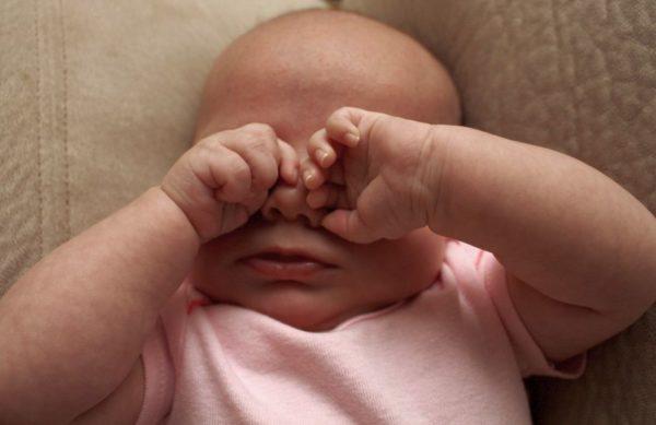 Воспаление глаз у младенца.