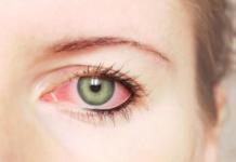 Покраснение глаза.