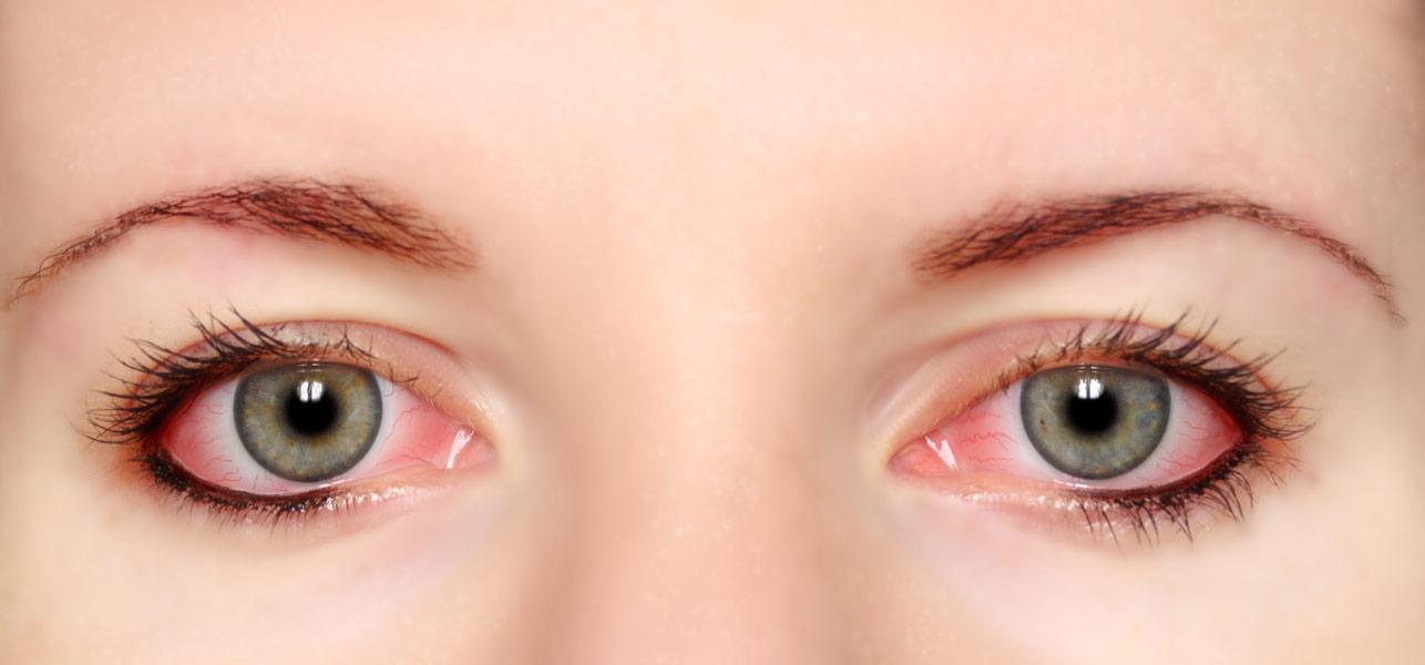 Что делать когда красный глаз в домашних условиях