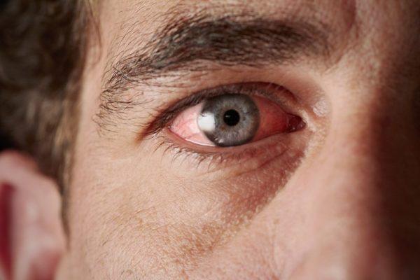 Раздражение глаза, вызванное внешними факторами.