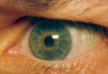 Желтизна глаз и их заболевания.