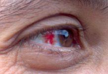 разрыв сосудов в глазу
