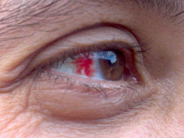 Кровоизлияние в глаз, лечение (что делать), причины, симптомы...