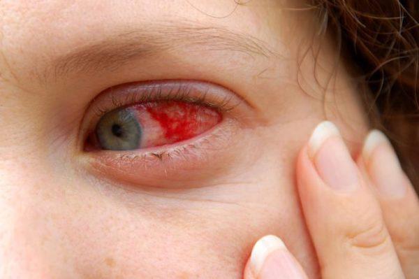 диагностика при гиперемии глаза