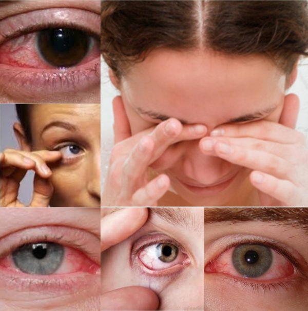 терапия при пониженном уровне влажности поверхности глазного яблока
