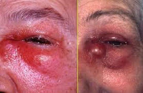 симптомы гнойного воспаления жировой клетчатки глаза