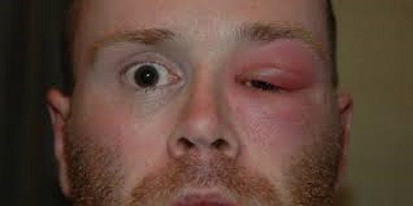 гнойное воспаление жировой клетчатки глаза