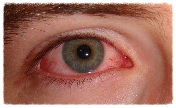 гиперемия глаза - симптом общих заболеваний