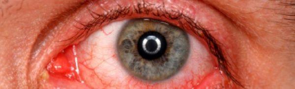 причины гиперемии органа зрения