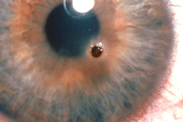 лечение после удаления инородного тела из органа зрения