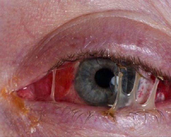 нагноение органа зрения