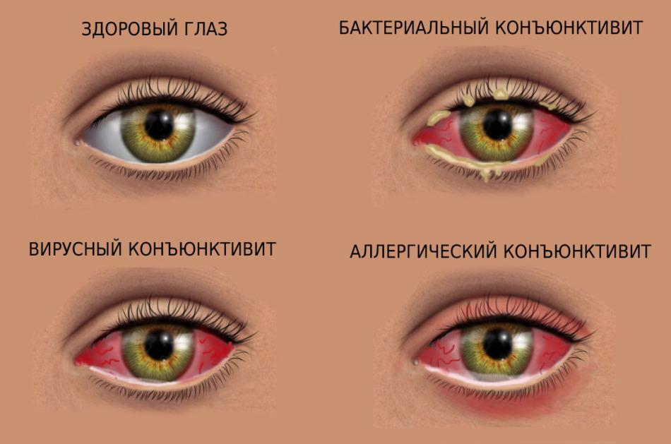 Как сделать красный глаз в домашних условиях