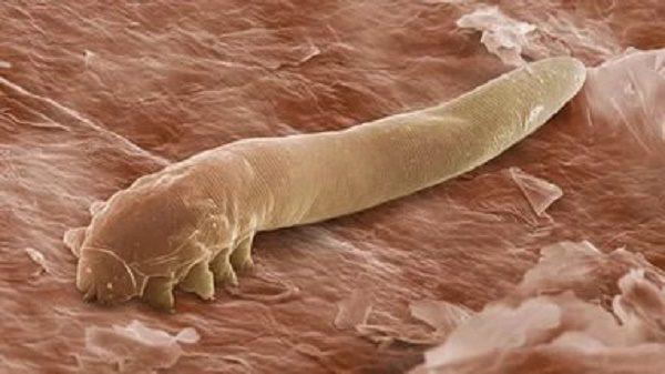 Клещ демодекс под микроскопом.
