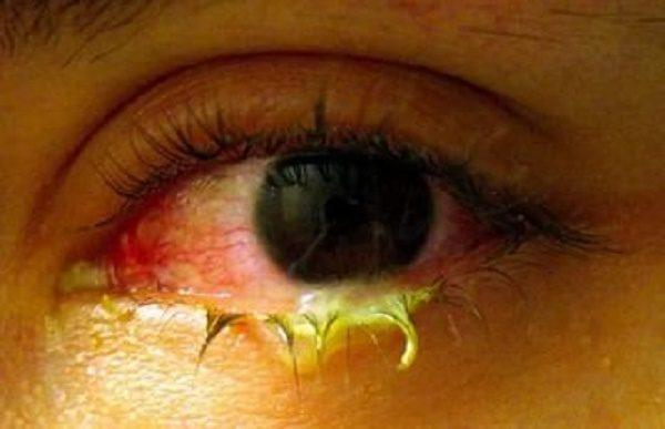 лечение органов зрения при наличии обильных выделений