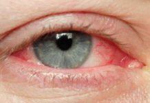активизация глазного клеща - симптомы