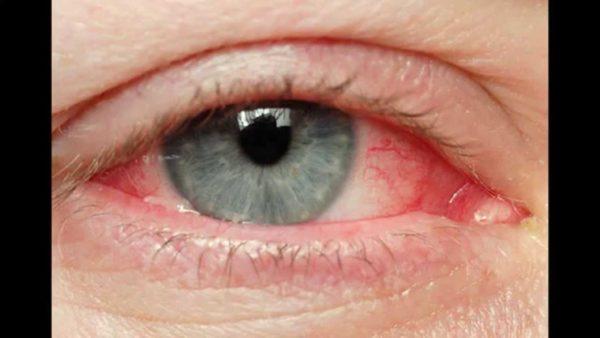 Воспаленный глаз и веки.
