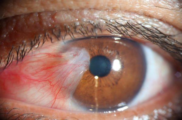 попадание в орган зрения инородного предмета