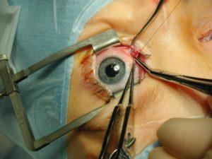 Резекция глазной мышцы при косоглазии