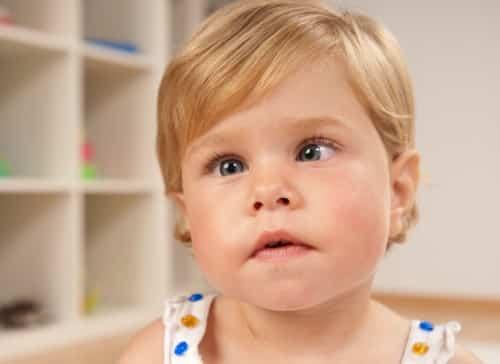 Косоглазие у ребенка