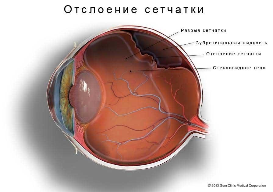 как выглядит отслоение сетчатки глаза