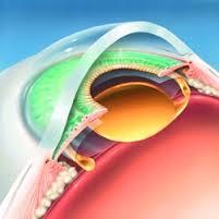 Катаракта: хирургическое лечение катаракты