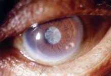 Послеоперационный период после удаления катаракты