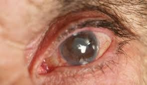Внешний вид глаза во время приступа