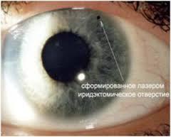 Даже хирургическое лечение глаукомы не позволяет избавиться от нее навсегда.