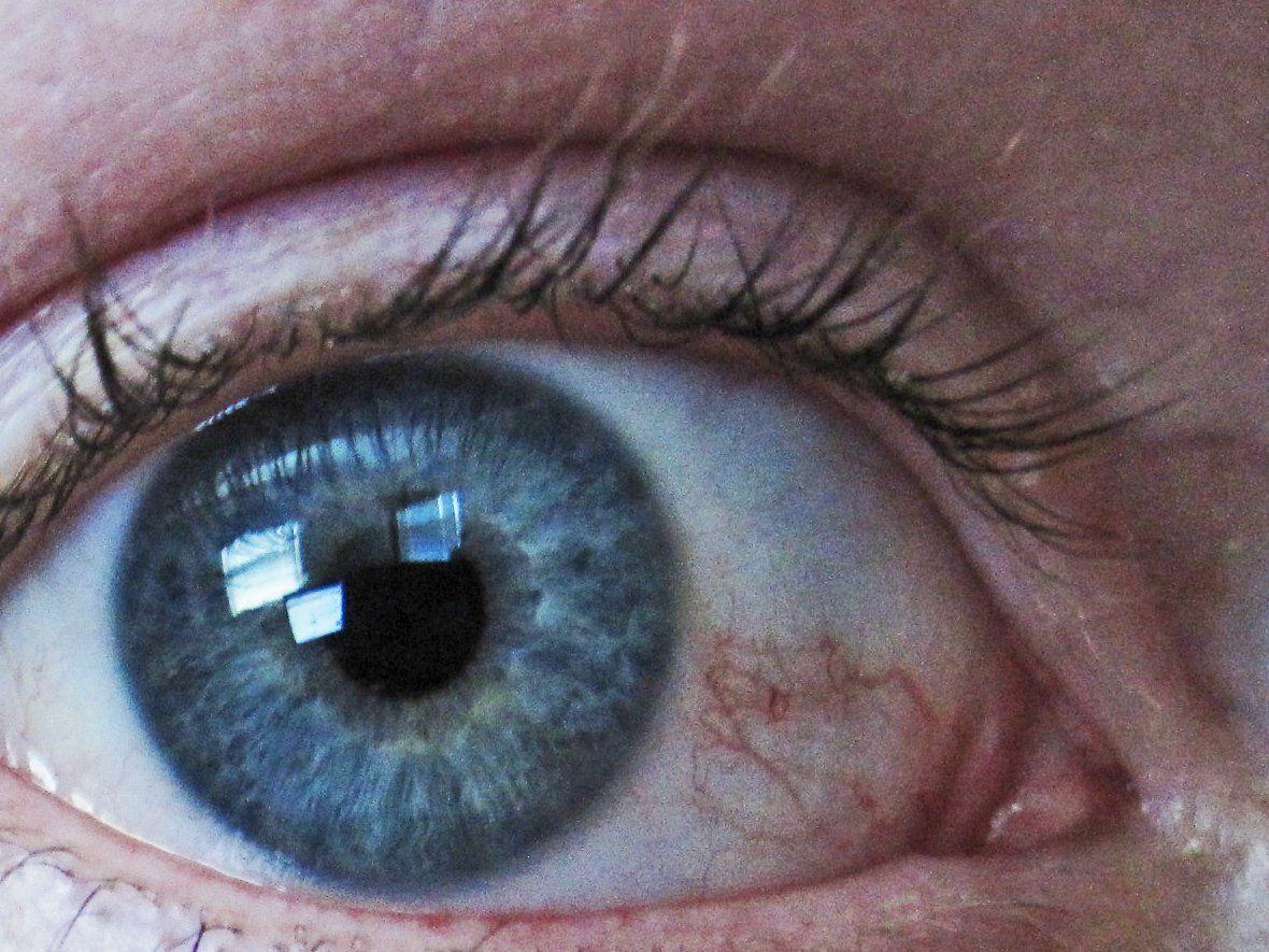 Острый приступ глаукомы - неотложная помощь