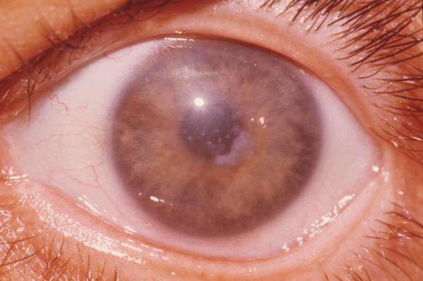 воспаленный глаз