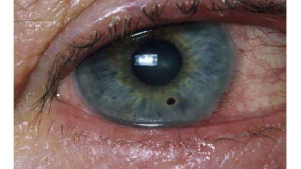 так выглядит пятно на роговице глаза