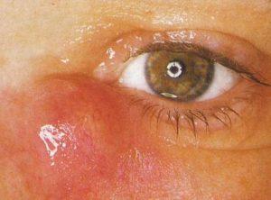 Симптомы дакриоцистита.