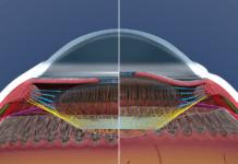 Глаз в разрезе, показывающий нормальную аккомодацию глаза