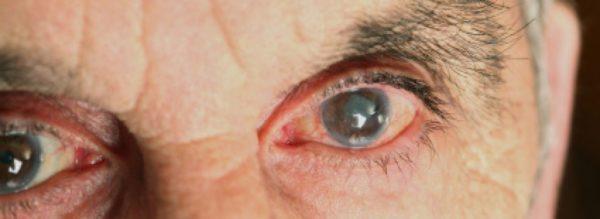 Пораженные заболеванием глаза.