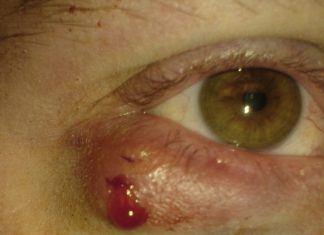 гнойный нарыв в области глаза выглядит несимпатично